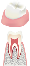 虫歯の初期状態