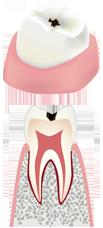 虫歯の中期状態